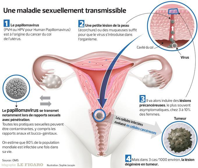 recherche papillomavirus chez homme)